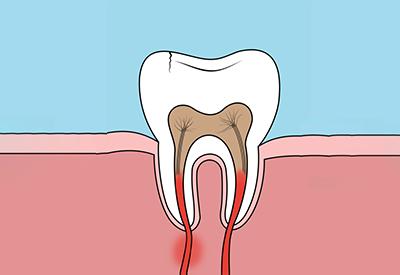 Bornholm tandlæge akut
