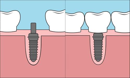 Implantat Bornholm tandklinik